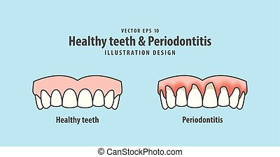 upper healthy teeth & Periodontitis illustration vector on blue background. Dental concept.