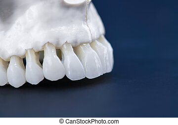 Upper human jaw with teeth