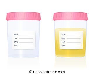 Urine sample - specimen cups for gynecological analysis - with blank labels and pink screw caps - empty and filled with urine. Isolated vector illustration on white background.