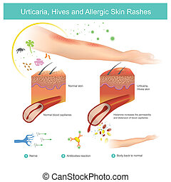 Urticaria, Hives and Allergic Skin Rashes is a kind of skin rash with red, itchy, bumps histamine increases the permeability and distension of blood capillaries. Illustration.