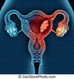 Uterus Cancer