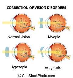 vário, correção, disorder., olho, visão