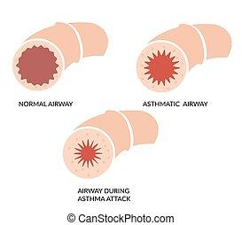 vía aérea, bloqueado, asma, -, icono