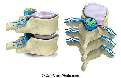 výhřez, disk, intervertebral