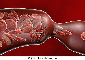 vaisseau, thromboembol, sanguine