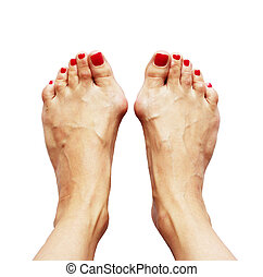 Valgus deformity of legs due of the cross flatfoot (hallux valgus) and weakness of ligaments on a white background. Flatfoot third degree.