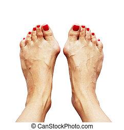 Valgus deformity of legs due of the cross flatfoot (hallux...