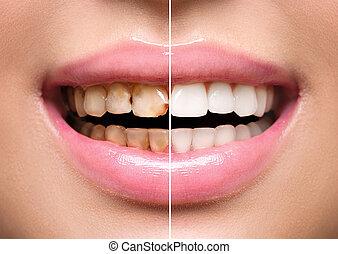 van een vrouw, teeth, vóór en na, whitening., mondelinge...