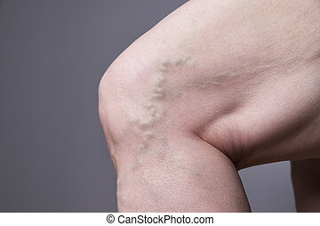 varicose, 女性, 静脈, 厚く, 足, closeup.