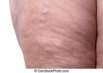 varicose, aders, closeup, dik, vrouwlijk, benen
