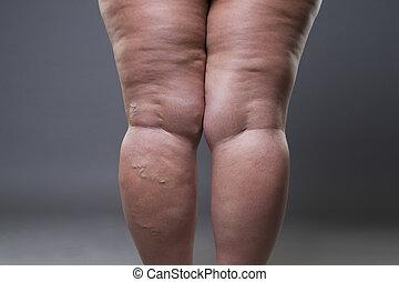 varicose, aders, closeup, dik, vrouwlijk, cellulite, benen