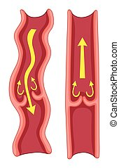 varicose, corps, humain, veines