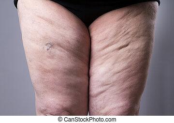 varicose, hembra, venas, grueso, piernas, closeup.