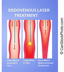 Varicose Veins and laser. Endovenous laser treatment