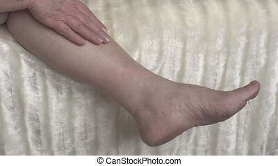 Varicose veins and thrombophlebitis in a woman's legs,...