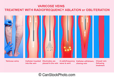 Varicose Veins. Treatment with radiofrequency ablation orobliteration of female legs