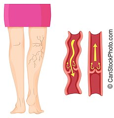 Varicose veins in human leg   illustration