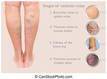 Varicose veins on a female senior legs. The stages of varicose veins