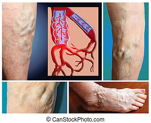 Varicose vein on a female senior legs. The structure of normal and varicose veins. Concept of dry skin, old senior people and deep vein thrombosis or DVT