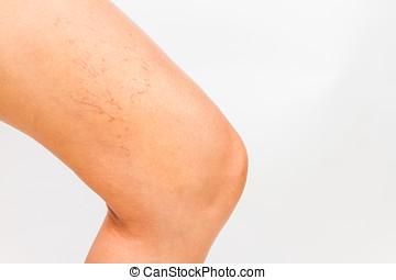 Varicose veins on a leg. - Varicose veins on a leg white...