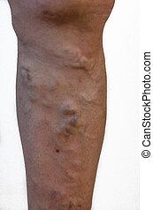 Varicose veins on a leg. - Varicose veins on a man leg,...