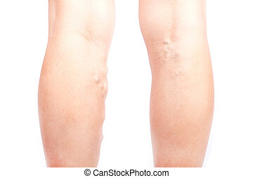 varicose veins on the legs of a girl, phlebeurysm disease