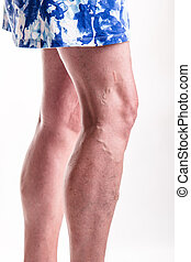 Varicose Veins on the legs of woman - studio shoot