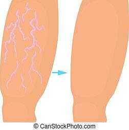 Varicose veins operation icon, cartoon style