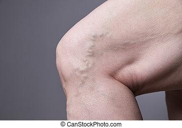 varicose, vrouwlijk, aders, dik, benen, closeup.