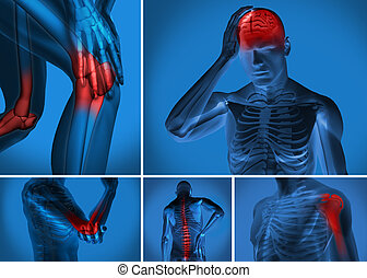 Various body pain highlighted on figure of man