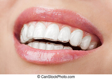 vassoio, imbiancando, denti
