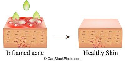 vecteur, bouton, anatomique, arrière-plan., acne., peeling.,...