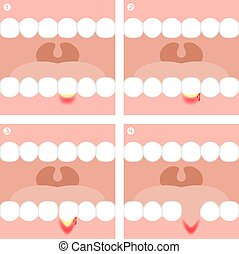 vecteur, illustration, infographic, gingivite, periodontitis, ou