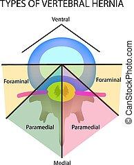 vecteur, isolé, hernia., types, emplacement, intervertébral, arrière-plan., illustration