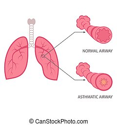 asthma - vector asthma illustration, bronchial, lungs ...