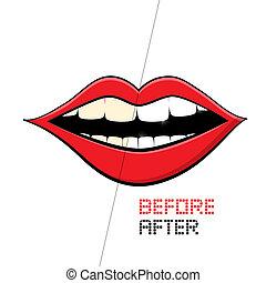 vector, boca, blanco, fondo., limpiar dientes, antes, y,...