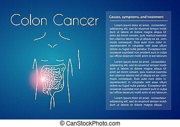 Vector Colon Cancer Blue Background