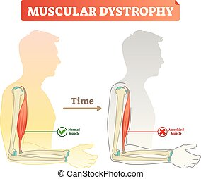 Muscular dystrophy vector illustration. Compared normal and healthy muscle versus atrophied and weak. Medical scheme with explanation how time affects bicep - normal strong muscle and degeneration.