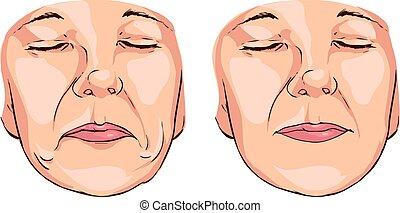 Vector illustration  medical of a smile lines