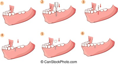 Vector illustration of a Illustration of a dental implant