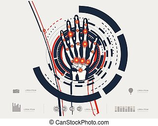 vector illustration of an arthritic