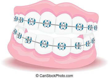 Dentures with Braces - Vector Illustration of Dentures with...