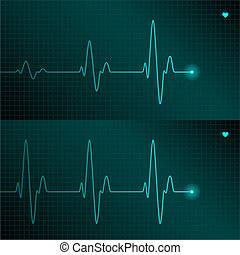 ECG tracing - Vector illustration of ECG tracing