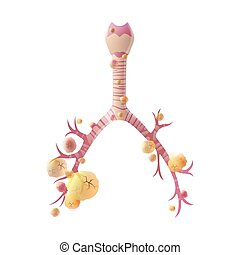 Vector illustration of lung cancer