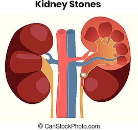 Vector illustration of the kidney stones. Obstruction of the...