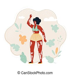 Vector illustration of vitiligo girl