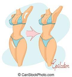 Vector illustration of women s hair removal, bikini area, undera