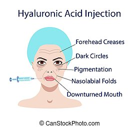 Vector illustration with usage of hyaluronic acid