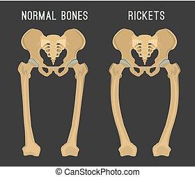 Vector Rickets Scheme - Normal bones versus Rickets and ...