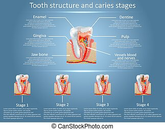 Vector tooth structure diagram and dental caries stages -...